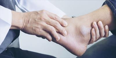 Ankle Arthroscopy