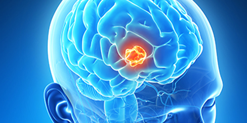 Neuro-Oncology-Services