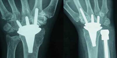 Wrist Replacement