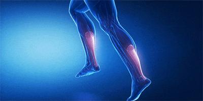 achilles tendon repair